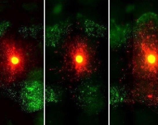 آنالیز سه بعدی تومورهای مغز با یک روش جدید تصویربرداری