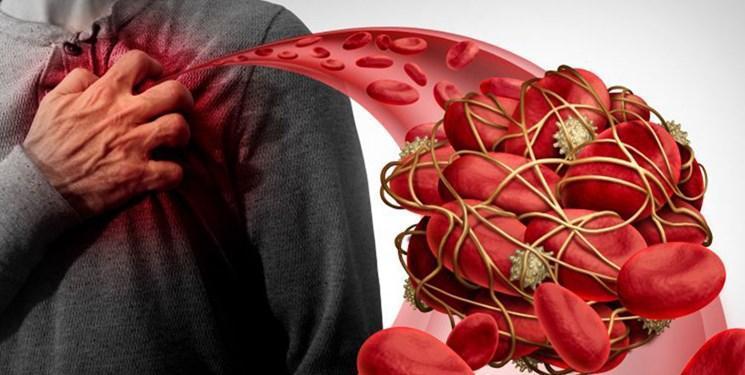 نانودارویی برای بهبود بیماران مبتلا به حمله قلبی یا سکته مغزی