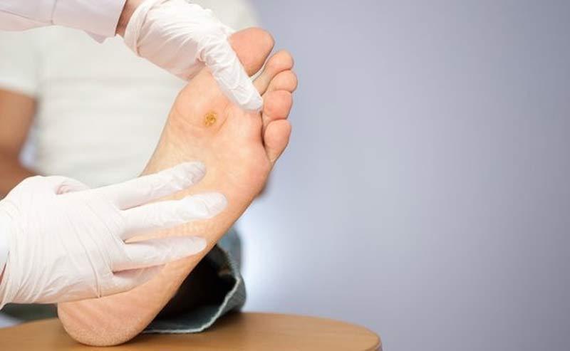 دیابتی ها چطور مراقب سلامت پا های خود باشند؟