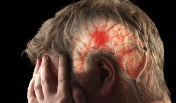 بعد از سکته مغزی چه ورزش هایی مفید است؟