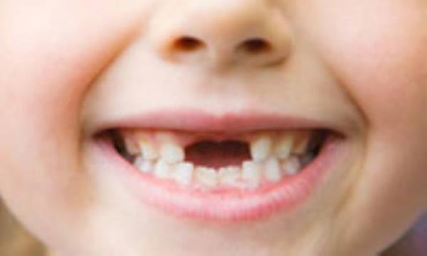 چگونه از دندان بچه ها مراقبت کنیم؟